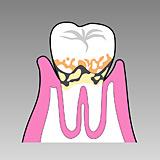 中等度の歯槽膿漏