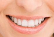 審美歯科イメージ3
