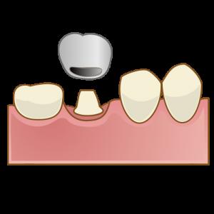 crown011