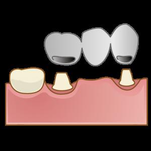 crown015