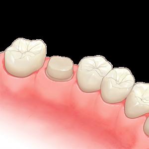 神経 抜く 歯