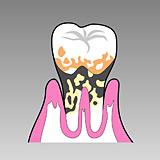 重度の歯槽膿漏